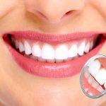 Zirkonyum Diş Nedir? Nasıl Yapılır?